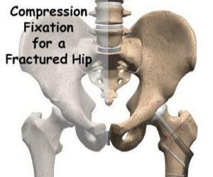 Osteossíntese com DHS na Fratura da Anca colo do fémur clinica barreiro fisioterapia CROB