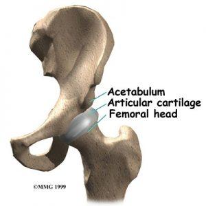 factura da anca crob barreira