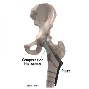 osteossintese fratura crob barreiro